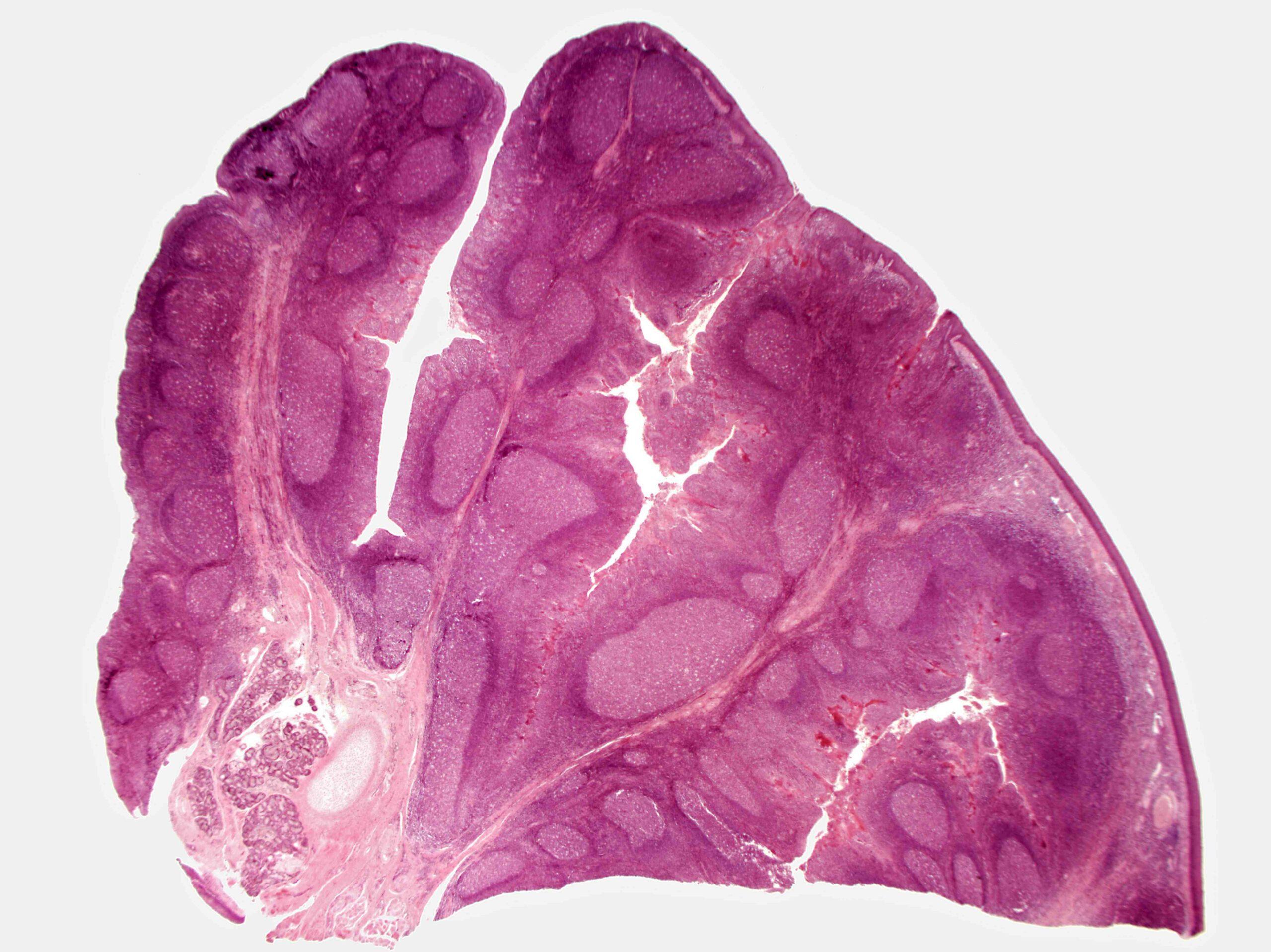 Comment savoir si on a une infection dans la gorge ?